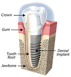 Dental Implants in Grand Rapids