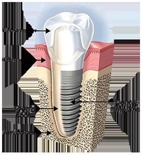 Dental Implants in Grand Rapids