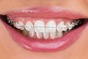 Orthodontics In Grand Rapids Vanderlugt Amp Mulder Dental