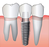 Options for Missing Teeth