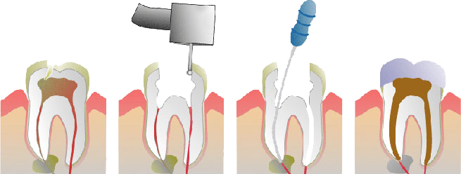 Root Canal Therapy in Grand Rapids