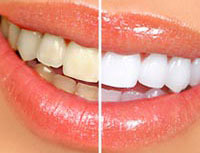 Cosmetic Dentistry - Whitening
